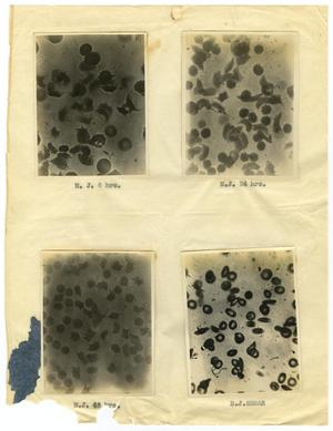 [Four Photographs of M. J.'s Sickle-Cell Anemia from Six Hours to Forty-Eight Hours]