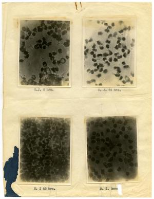 Primary view of object titled '[Four Photographs of E. J.'s Sickle-Cell Anemia from Six Hours to Forty-Eight Hours]'.