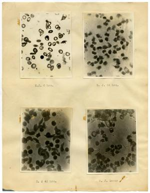 [Four Photographs of E. J.'s Sickle-Cell Anemia from Six Hours to Forty-Eight Hours]