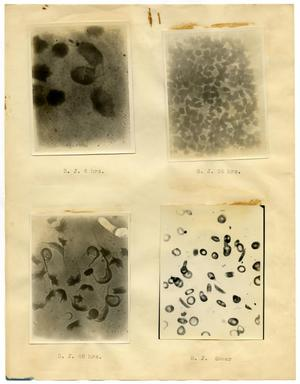 [Four Photographs of B. J.'s Sickle-Cell Anemia from Six Hours to Forty-Eight Hours]