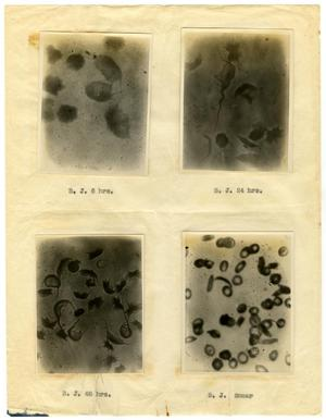 Primary view of object titled '[Four Photographs of B. J.'s Sickle-Cell Anemia from Six Hours to Forty-Eight Hours]'.