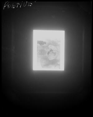 Positive Pelvic X-Ray